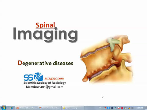 Imaging of Spinal degenerative diseases - Prof. Dr. Mamdouh Mahfouz
