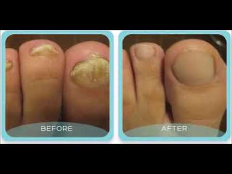 How Long Should I Take Lamisil For Toenail Fungus – Quickest Way To Remove Toenail Fungus