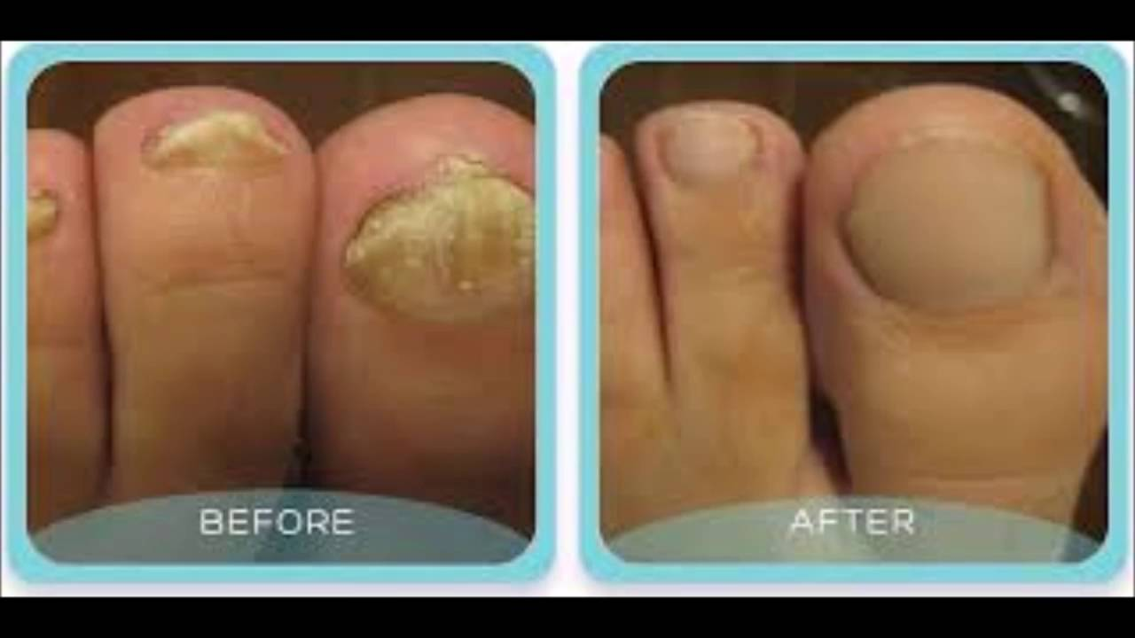 How Long Should I Take Lamisil For Toenail Fungus