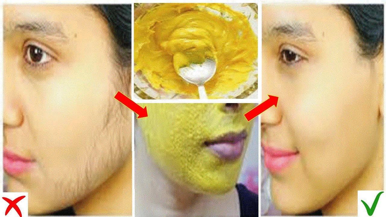 Facial hair home remedy removal — photo 5