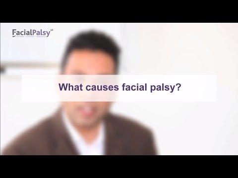 Bell's Palsy - Facial Palsy UK