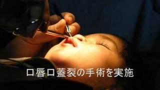 Repeat youtube video ADRA Japan ネパール口唇口蓋裂医療プロジェクト