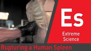 How Much Force to Rupture a Spleen: Sport Science thumbnail