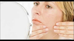 hqdefault - Facial Hair And Acne Causes In Women