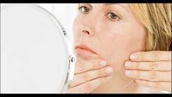 hqdefault - Facial Hair Acne Causes Women