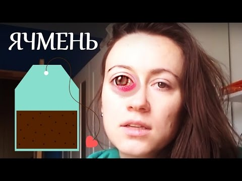 Ячмень на глазу с фото - Симптомы и лечение народными