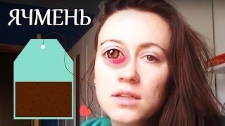 Как я лечу ячмень на глазу | BeautyGuild(Beauty-эксперт Вера Shtukensia сегодня рассказывает о способе вылечить ячмень на глазу, как делать макияж при ячмен..., 2015-09-22T19:30:10.000Z)