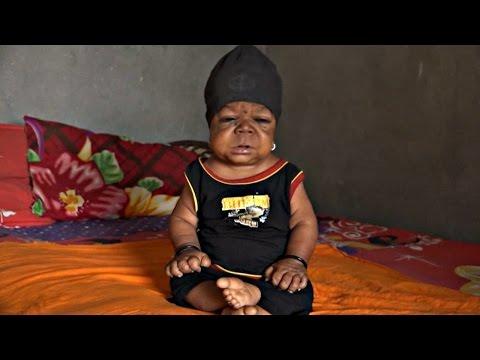 Загадка для медицины: 22-летний индиец выглядит как младенец (новости)