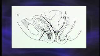 Vaginal Prolapse Symptoms