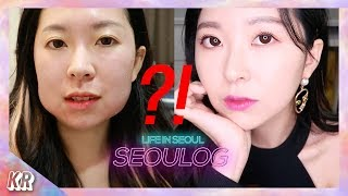 WHAT HAPPENED TO MY FACE?! │Cosmetic Procedures in Korea