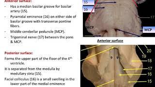 Midbrain and pons anatomy by Dr. Maha ELBeltagy