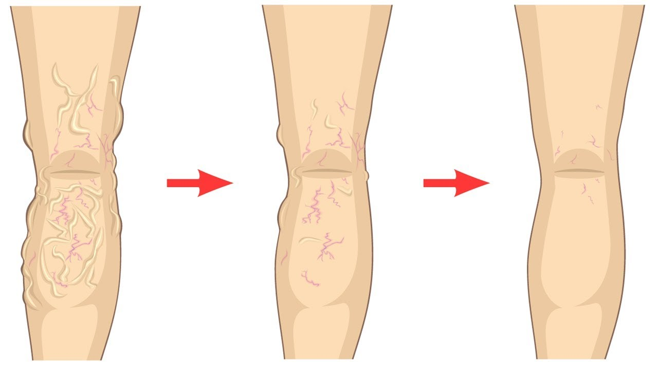 getting rid of varicose veins without surgery