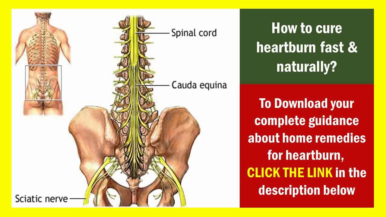 sciatica pain in hindi - natural remedies for sciatica nerve pain ...
