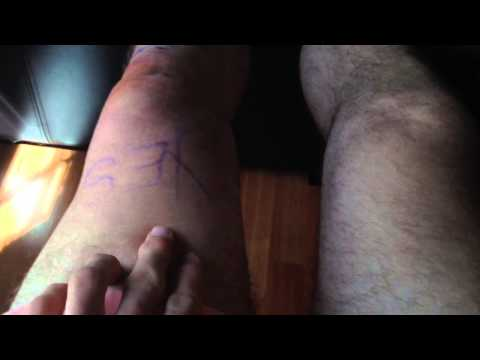 Meniscus Tear Surgery And Recovery Part