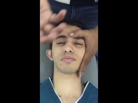 Facial palsy Rehabilitation practical
