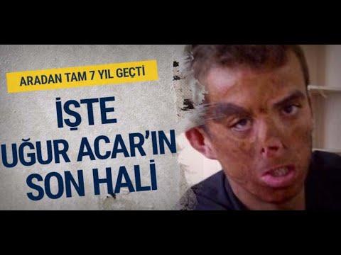 Türkiye'nin ilk yüz nakli olan Uğur Acar'ın 7 yıl geçti Son haline bakın