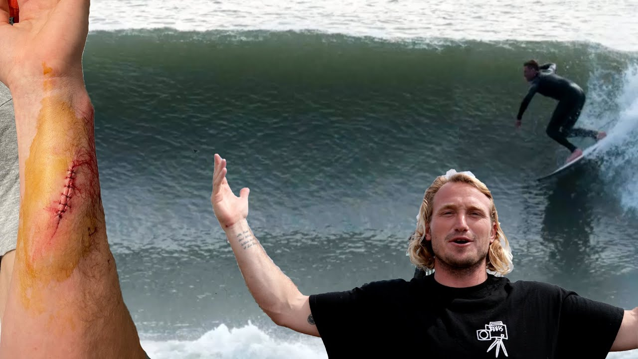 My Wetsuit SAVED this Surfer's LIFE (Serious Injury)