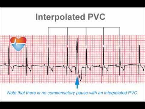 My PVC (heart skips) - YouTube