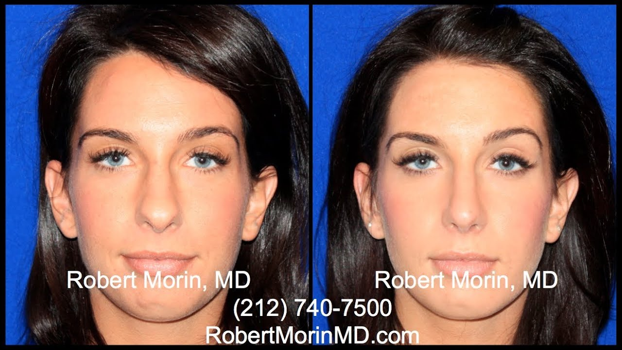 Nyc Rhinoplasty Before And After Patient Experience