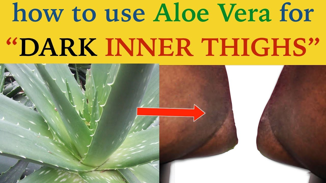 How to get rid of dark inner thighs How to get rid of dark inner thighs new pics