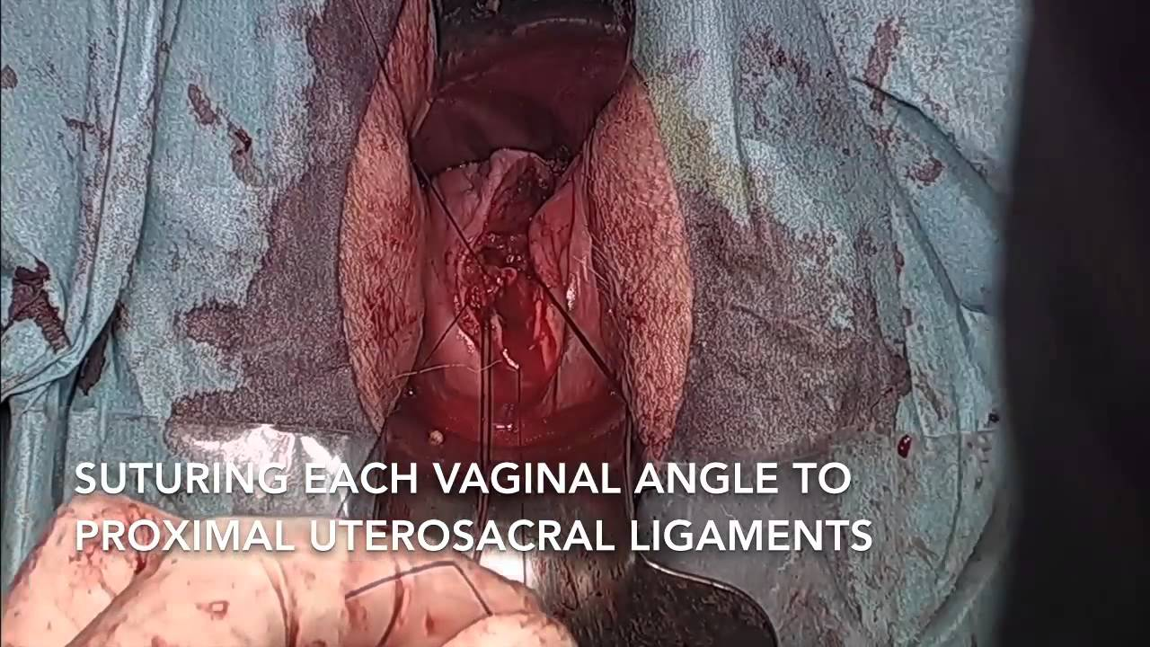 Recurrent Pelvic Organ Prolapse