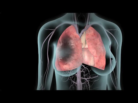 DVT and Pulmonary Embolism | Nucleus Health