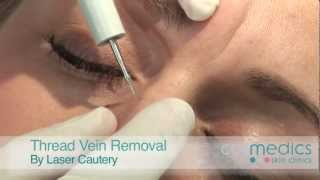 Of laser removal facial Cost for vein