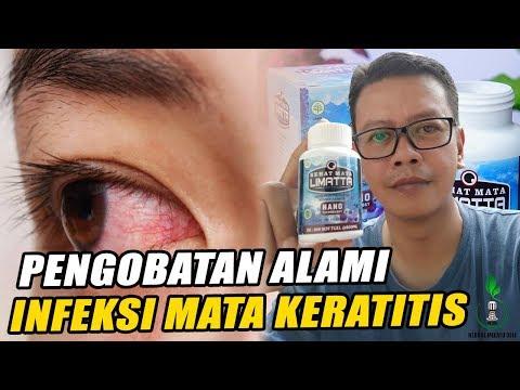 cara-menyembuhkan-infeksi-mata-keratitis-secara-alami---testimoni-limatta-sehat-mata-softgel