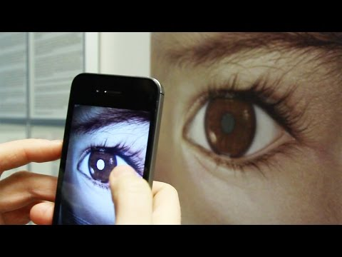 Detect Eye Cancer (Retinoblastoma) with Your Smart Phone – CHECT UK