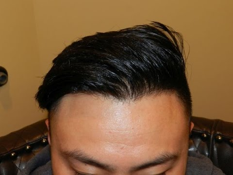 Lower Hairline Surgery Results on Asian Male by Dr. Diep http://www.mhtaclinic.com