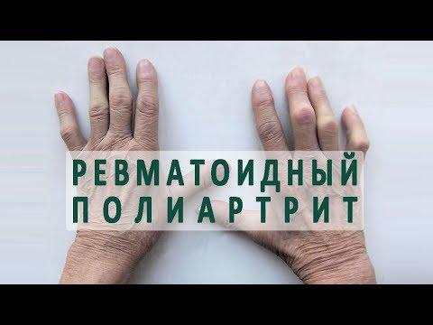 Препараты для лечения шейного остеохондроза: лекарства
