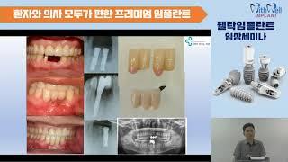임플란트를 위한 뼈이식 1강(터널테크닉을 사용하여)