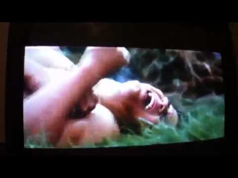 Jacob gets hurt