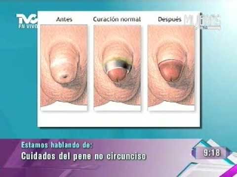 Pene circunscrito vs no circunscrito