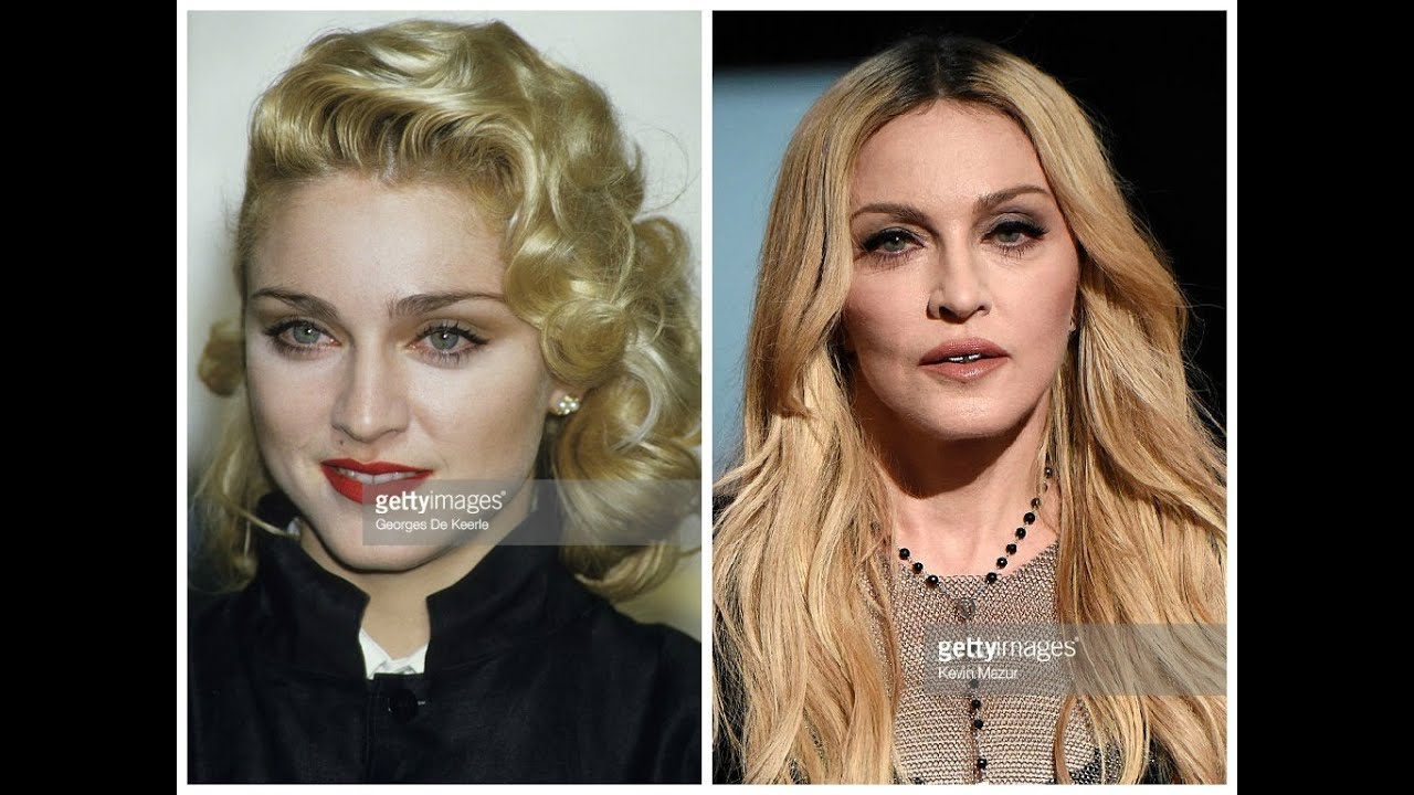 madonna plastic surgery before and after photos - youtube