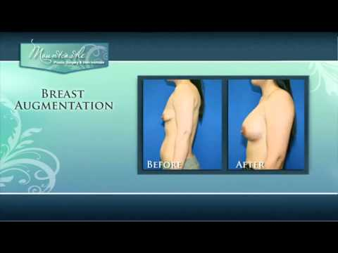 Breast Augmentation - Dr Mountcastle reviews Breast Augmentation