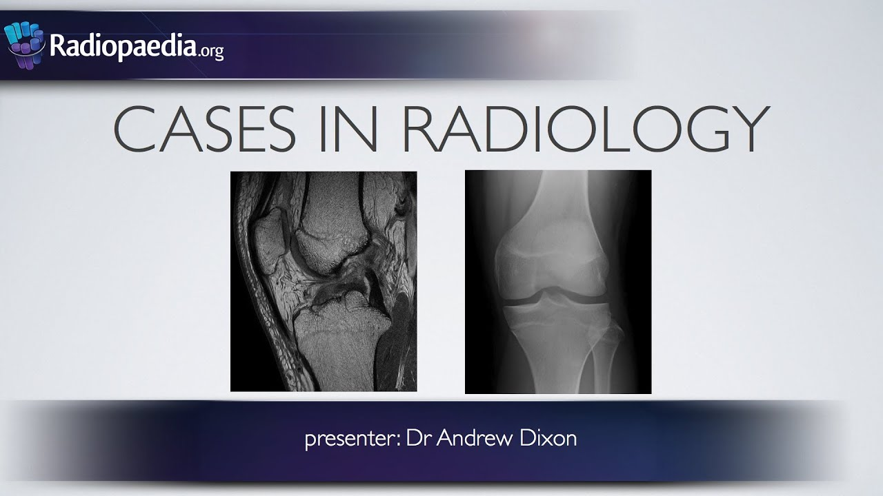 Cases in Radiology: Episode 4 (musculoskeletal, MRI, x-ray) - YouTube