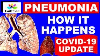 COVID 19 And Pneumonia | Pneumonia - causes, symptoms, diagnosis, treatment, pathology | Daily MED