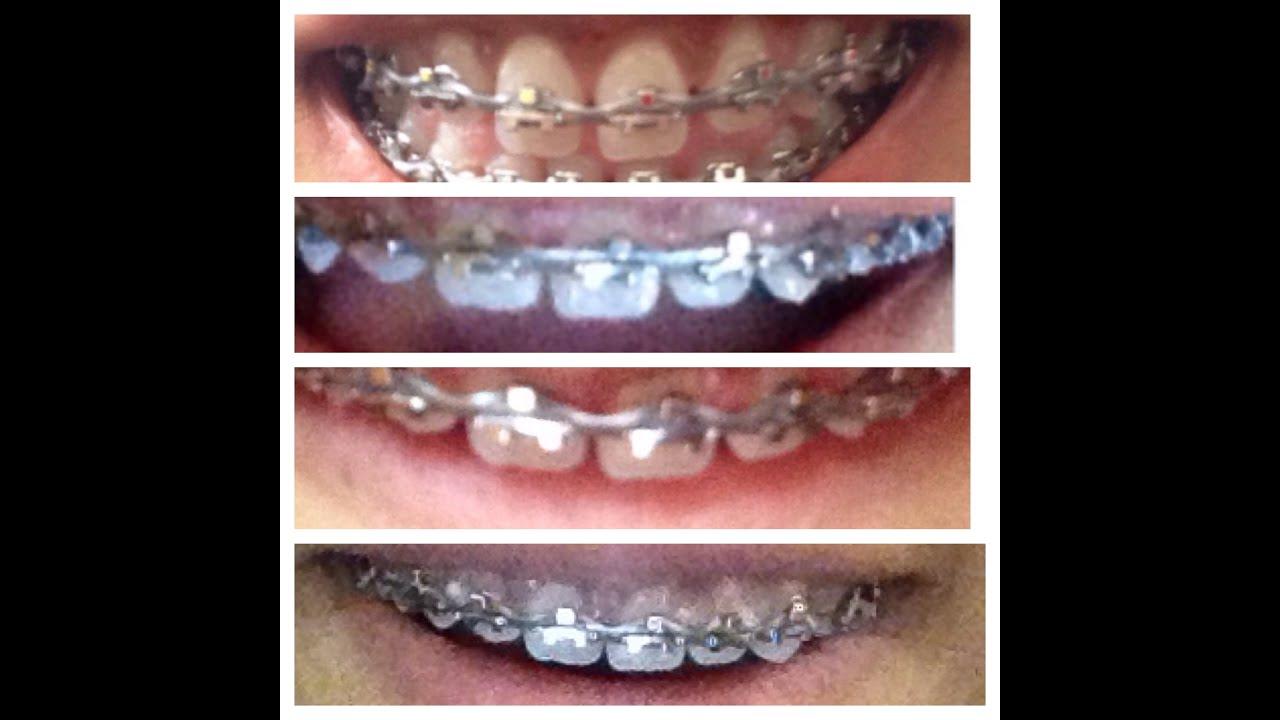 Brace Update } gum disease update, changed brackets and ...  Brace Update } ...