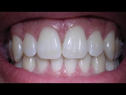 Having 5 Teeth Pulled & Titanium Implants Using Stem Cells | Dental Implants Surgery & Cost