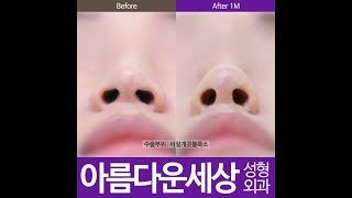 콧볼축소술/콧볼축소수술…