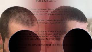 HERE'S HOW TO REVERSE BALDING & REGROW YOUR