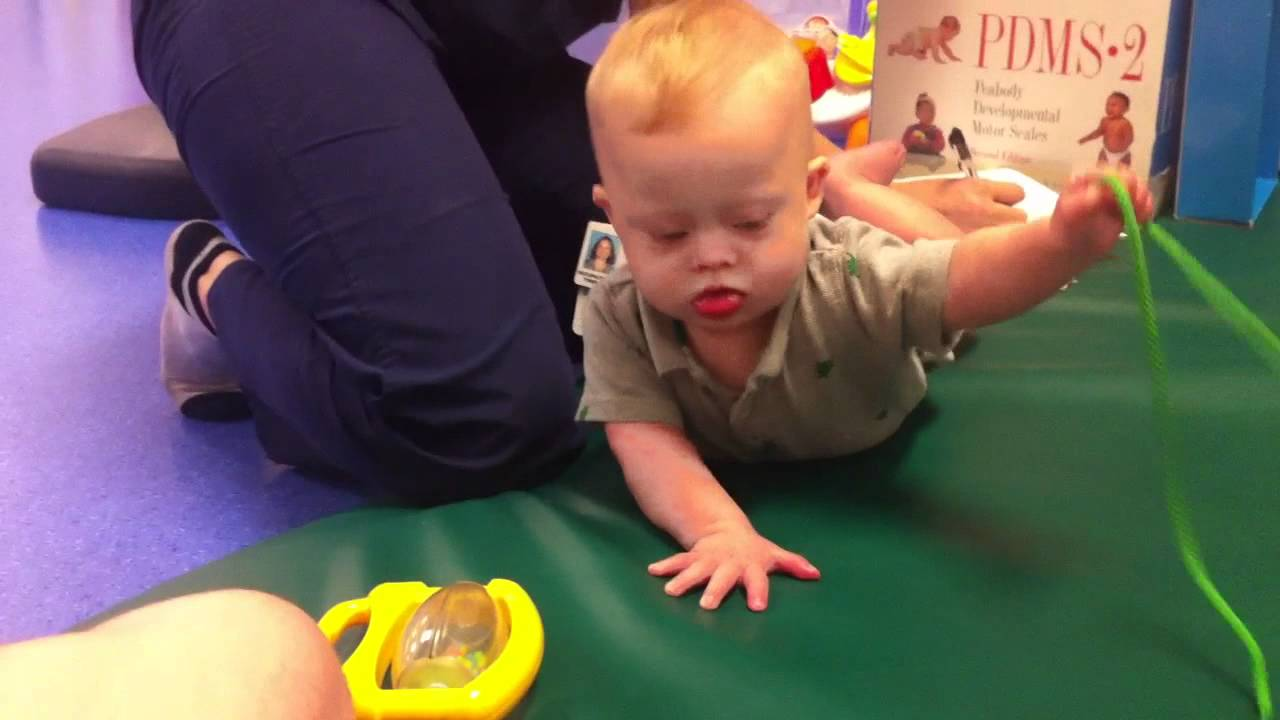 Down syndrome and physical therapy - Down Syndrome Physical Therapy Exercises For Children Born With Down Syndrome Youtube