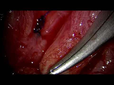 Vasectomy reversal microsurgery - Dr. Kovac - Feb 10 2019 - HD
