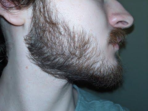 minoxidil-for-beard-growth:-day-280-//-40-week-progress