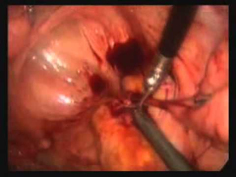 Colorectal Surgery Reversal Cholostomy Youtube
