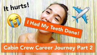 Cabin Crew Career Journey Part 2   I Had My Ugly Teeth Done!