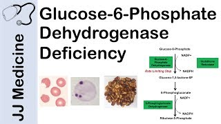 Glucose-6-Phosphate Dehydrogenase Deficiency | Symptoms, Pathophysiology, Diagnosis and Treatment