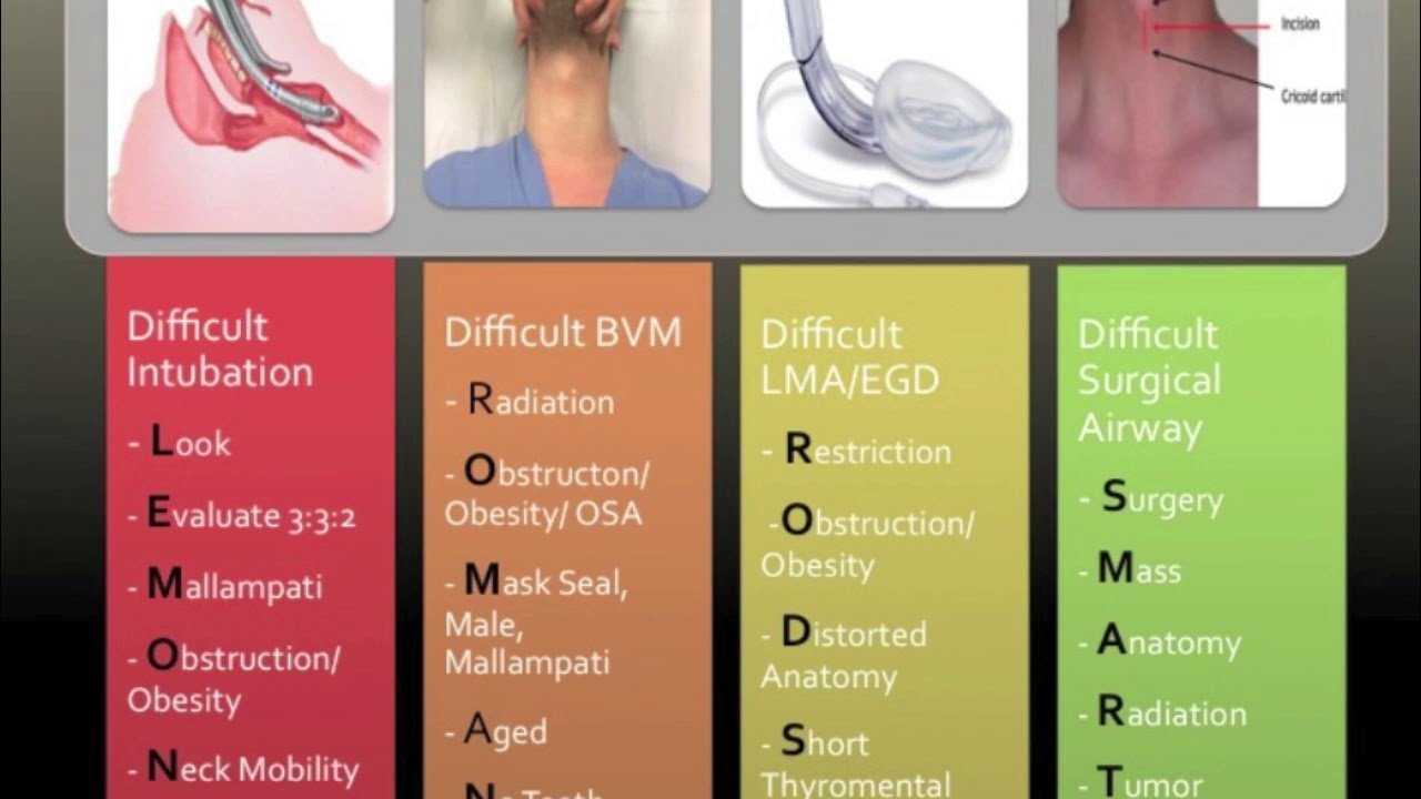 Pre Intubation Airway Assessment - YouTube