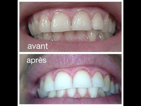 Le secret des dents blanches the secret white teeth youtube - Eau oxygenee bicarbonate de soude ...